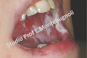 leucoplachia-fig-4