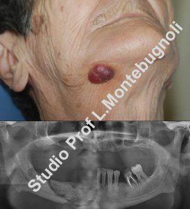 osteonecrosi-fig-4